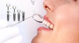 implant-tedavisi-7