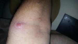 boil on left arm