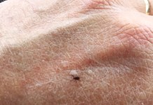After being outdoors, be alert to sensations that might be a tick crawling on you.