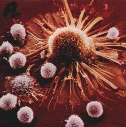 Killer T-cells attack a cancer cell