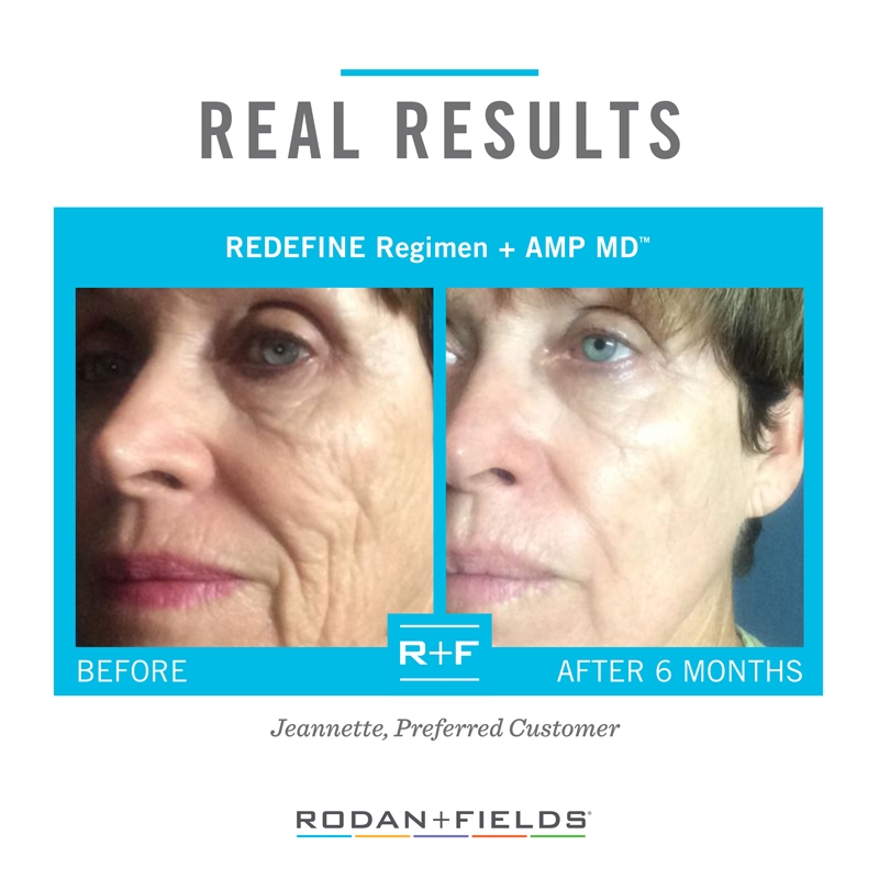 Rodan + Fields REDEFINE