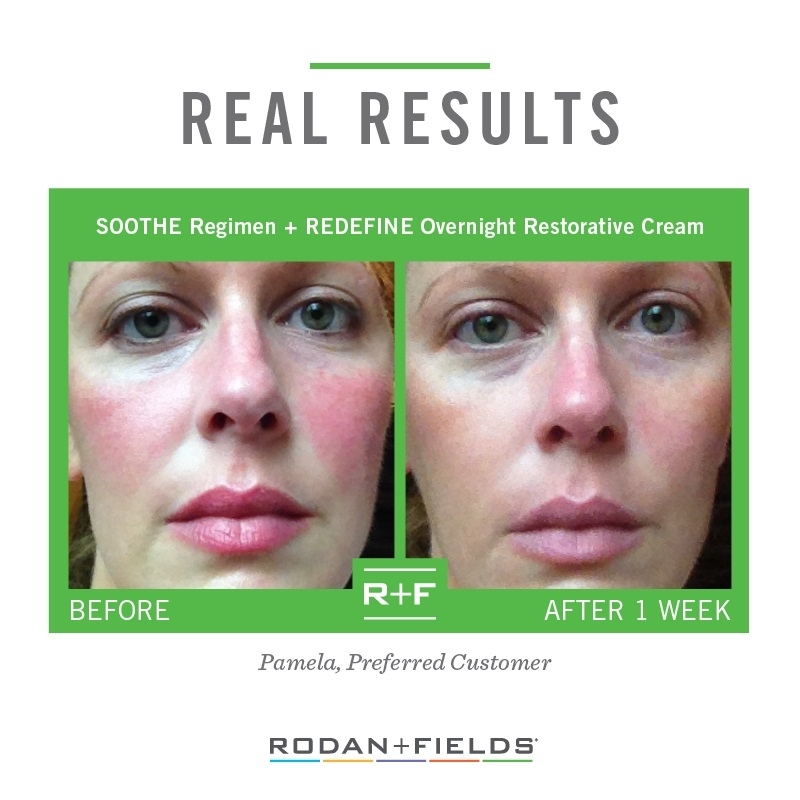 I Want You To Look Good Photography And Rodan Fields