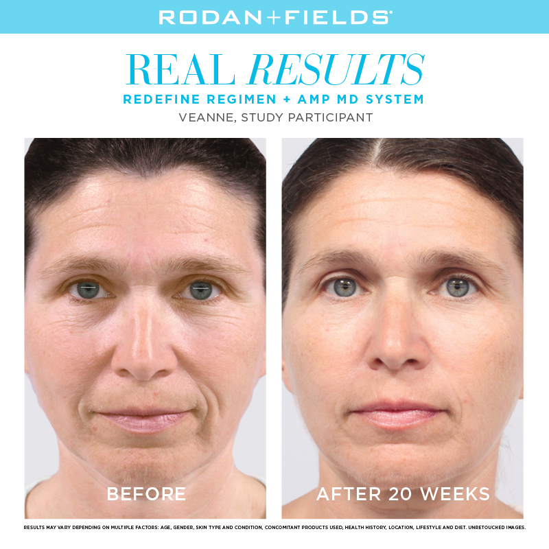 Rodan + Fields Redefine Before + After
