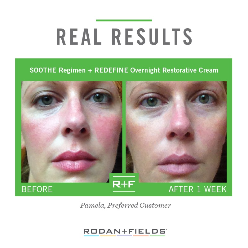 Rodan + Fields Soothe Before + After