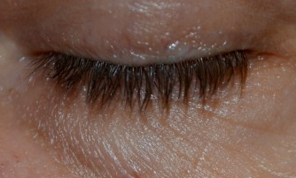 The frail skin around the eye