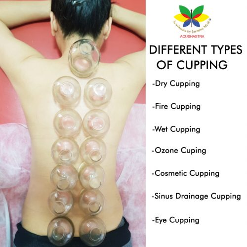 tyopes-of-cupping