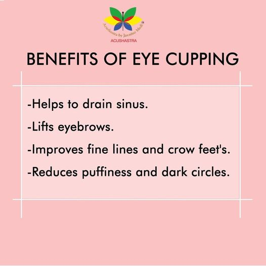 Benefit Of Eye Cupping - Acushastra By Jasmine Modi