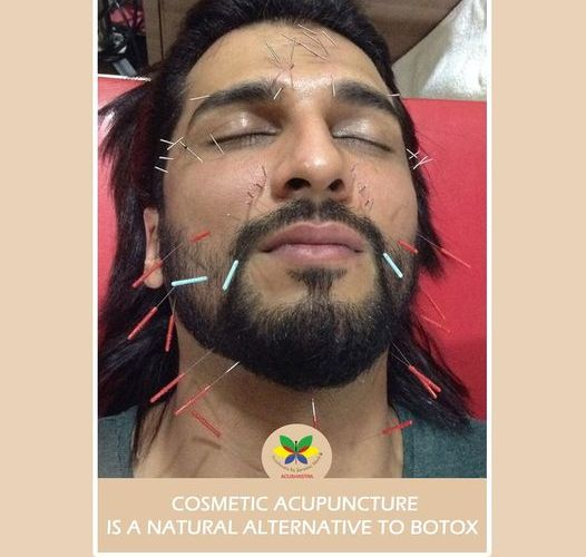 Glance of cosmetic acupuncture at Acushastra!