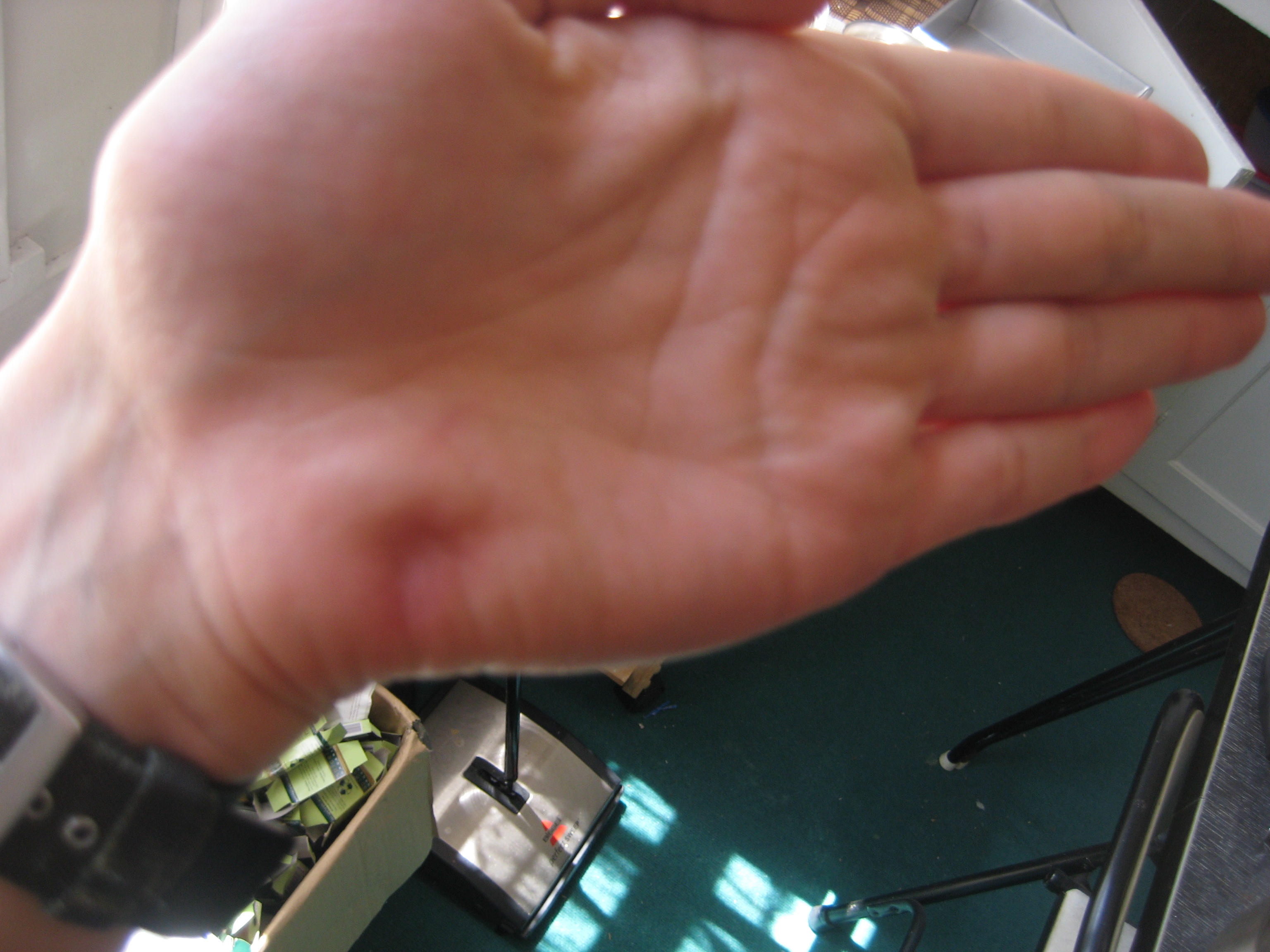 My left palm, six weeks later