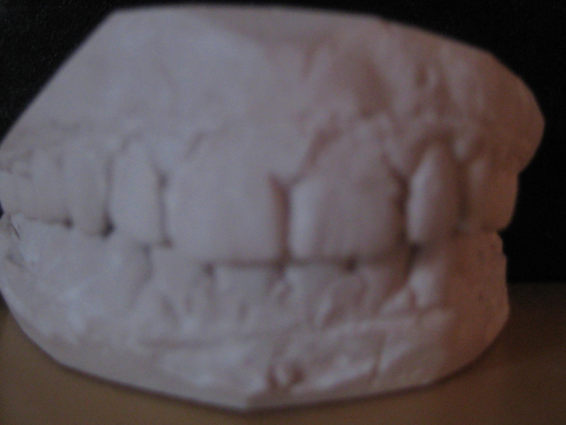 My old teeth