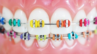كيف تعتني بفمك و أسنانك مع وجود التقويم؟