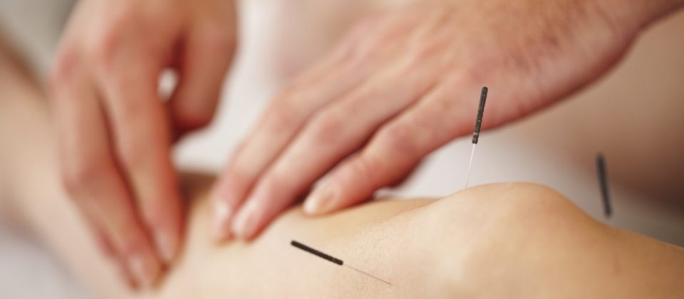 Image result for Acupuncture Services Istock