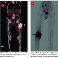 Emerging role of PET/CT in osteosarcoma