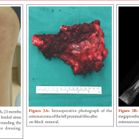 Limb Salvage With Megaprosthesis In Extremity Osteosarcoma –a Case-based Approach