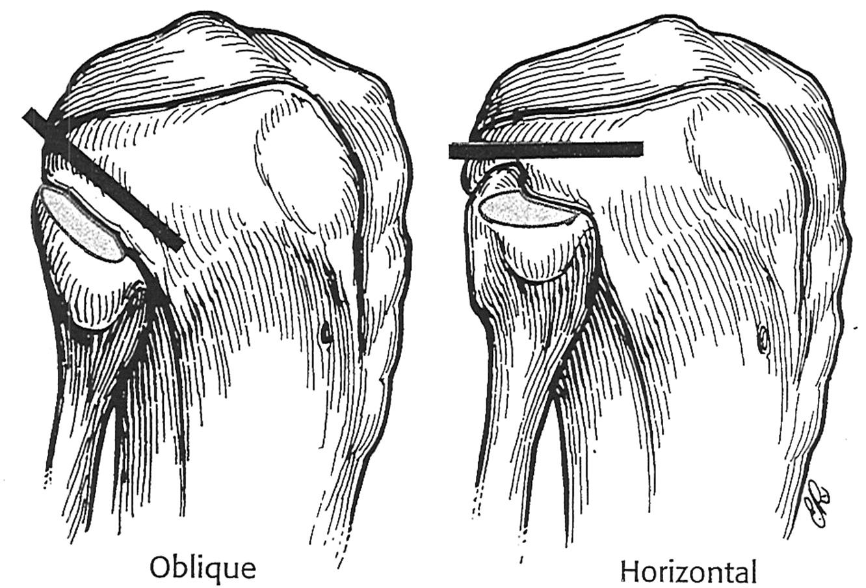 Proximal Tibiofibular Joint