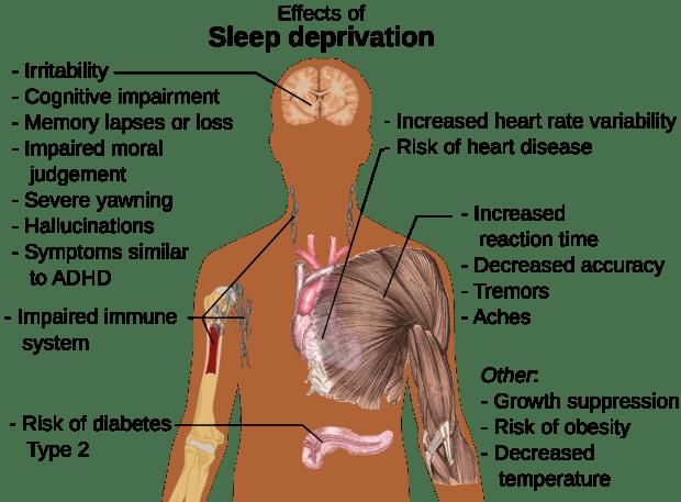 Sleep deprivation side effects -- Wikimedia