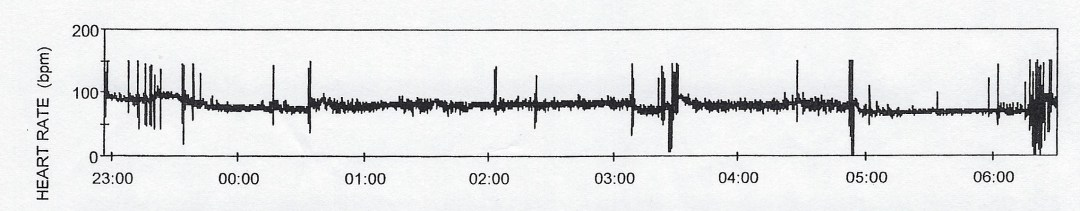 Heart rate graph from 2012 sleep study showing high and low heart rates with median of about 100 dropping steadily during the night.