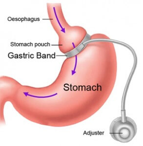 Surgical Gastric Band