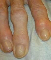 Osteoarthritisjeffreydachmd