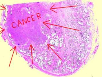 Prostate adenocarcinoma cancer