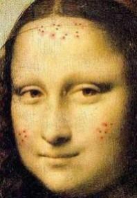 Mona_Lisa_acne_Pantothenic_Acid_B5_Acne-e1374086930884