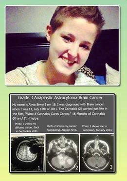 Alysa erwin MRI Astrocytoma cannabis