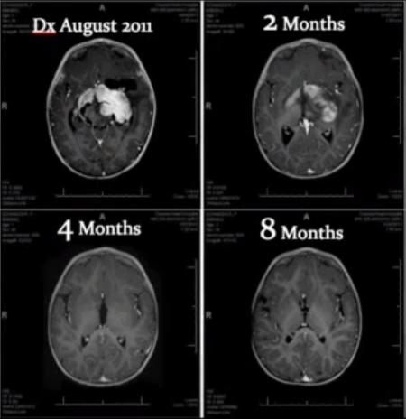 Cannabis Oil Brain Tumor Remission by Jeffrey Dach MD - Jeffrey ...