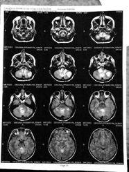 tumors-on-872012_elysa_Erwin_astrocytoma