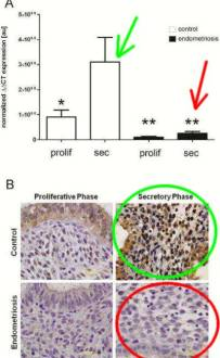Progesterone-dependent Regulation of Endometrial Cannabinoid Receptor