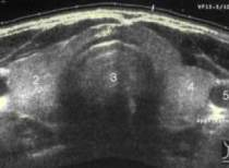 thyroid_sonogram