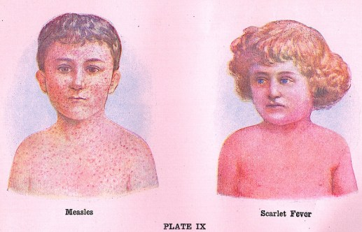 Measles and Scarlet Fever EUObserver
