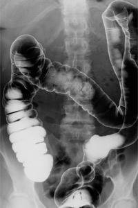 fecal-transplant-1