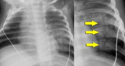 rib_fractures-2