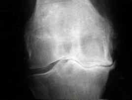 osteoarthritis knee