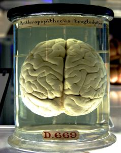 Is Your Brain in Jar Medical Museum