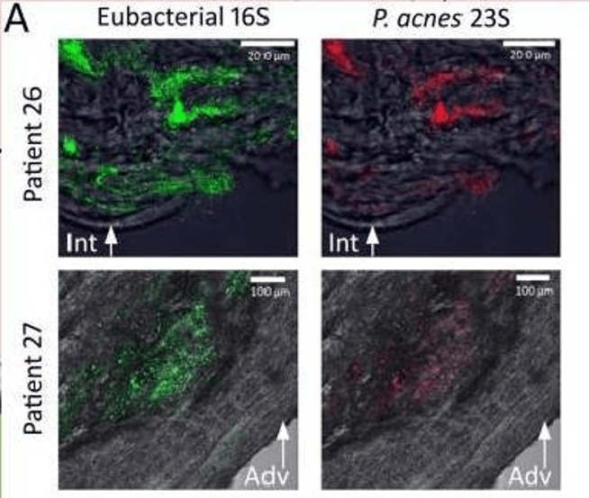 Propionibacterium acnes Recovered from Atherosclerotic Human Carotid Arteries Undergoes Biofilm Dispersion Lanter B 2015