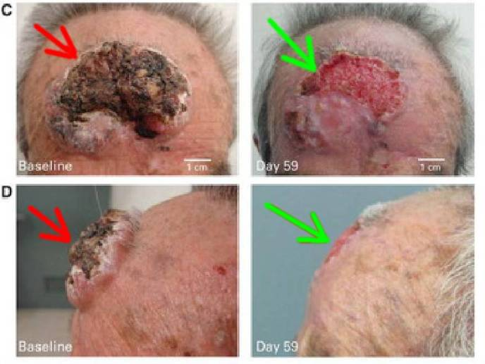Itraconazole for Basal Cell Carcinoma_Jeffrey Dach MD