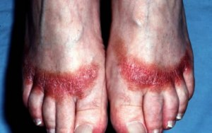 contact-dermatitis-feet