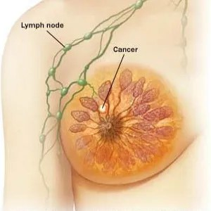 stage-2-breast-cancer