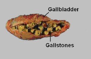 gallbladder2