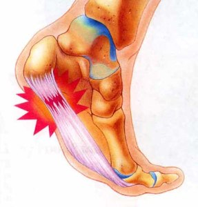 Plantar_Fasciitis1