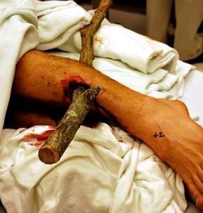 impaled treelimb