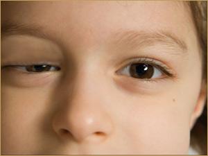 eye-ptosis
