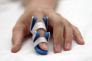 An injured man's finger in a splint.