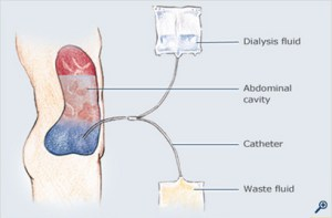 Dialysis-thumb_rdax_408x269