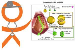cholesterol types