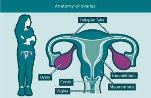 ovarian cancer anatomy