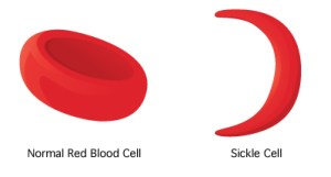 sickle cell vs normal