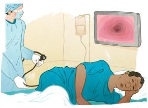 colonoscopy_procedure