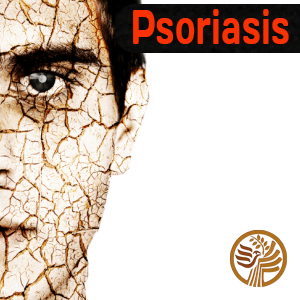 Psoriasis with Vitamin D3
